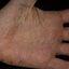 10. Сухой пластинчатый дисгидроз фото