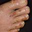 2. Сухой пластинчатый дисгидроз фото