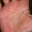 24. Сухой пластинчатый дисгидроз фото