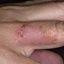 5. Стрептодермия фото