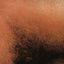 3. Скарлатина у взрослых фото