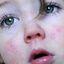11. Скарлатина у детей фото