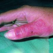 Рожа на пальце руки