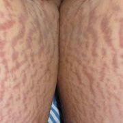 Растяжки на ногах