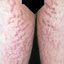 9. Растяжки на ногах фото