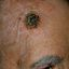 21. Рак на коже фото