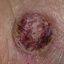 23. Рак на коже фото