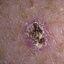 43. Рак на коже фото