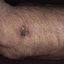 11. Рак кожи на руках фото