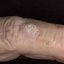 14. Рак кожи на руках фото