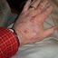 16. Рак кожи на руках фото