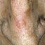 1. Рак кожи на носу фото