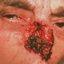 5. Рак кожи на носу фото