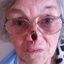 8. Рак кожи на носу фото