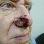 9. Рак кожи на носу фото