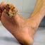 2. Рак кожи на ноге фото