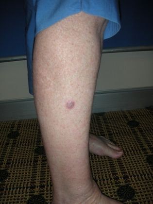 Рак кожи на ноге фото – 22 шт. / fotodiagnoz.com