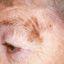 11. Рак кожи лица фото