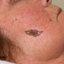 12. Рак кожи лица фото