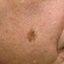 14. Рак кожи лица фото