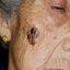 17. Рак кожи лица фото