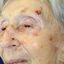 19. Рак кожи лица фото