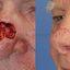 20. Рак кожи лица фото