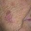 24. Рак кожи лица фото