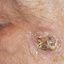 25. Рак кожи лица фото