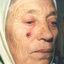 28. Рак кожи лица фото