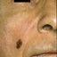 3. Рак кожи лица фото