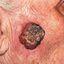 30. Рак кожи лица фото