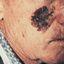 4. Рак кожи лица фото
