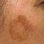 6. Рак кожи лица фото