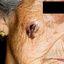 7. Рак кожи лица фото