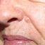 8. Рак кожи лица фото