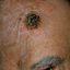 16. Рак кожи головы фото