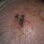 17. Рак кожи головы фото
