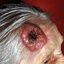 20. Рак кожи головы фото