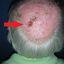 5. Рак кожи головы фото