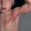 11. Опоясывающий лишай у детей фото