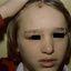 5. Опоясывающий лишай у детей фото