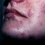 31. Опоясывающий лишай на лице фото
