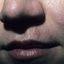 4. Опоясывающий лишай на лице фото