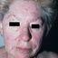 5. Опоясывающий лишай на лице фото