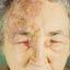 7. Опоясывающий лишай на лице фото