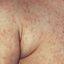 1. Коревая краснуха у взрослых фото