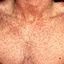 12. Коревая краснуха у взрослых фото