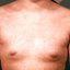 4. Коревая краснуха у взрослых фото