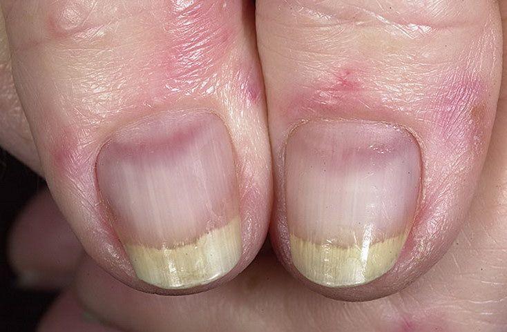 Лишай ногтей у человека